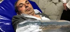 CHP'li Belediye Başkan Yardımcısına saldırı! | Son dakika haberleri